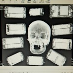 A radiographer's look at the skull – and those things so often attached to it.